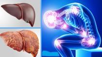 Karaciğer yağlanmasının önüne nasıl geçilir ?